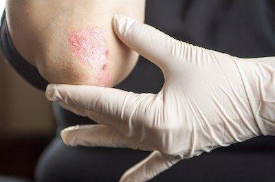 stress skin disorders